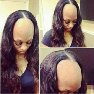 Ladies, See The Dangers Of Fixing Weaves (PHOTOS) | INFORMATION ...