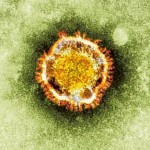 Coronavirus Needs To Be Taken Seriously – Experts