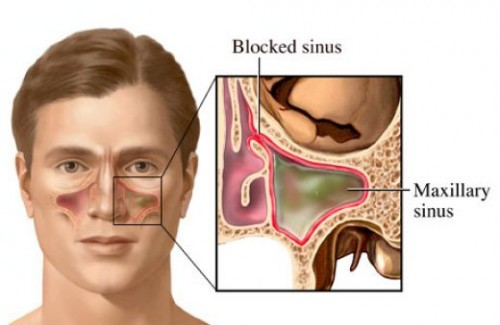 Acute sinusitis: Causes, Symptoms And Treatments