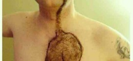 PHOTO: See Bizarre Chest Hair In The Shape Of A Cat.