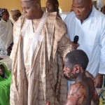 GOV. KASHIM SHETTIMA VISITS SURVIVORS OF RECENT BOKO HARAM ATTACKS