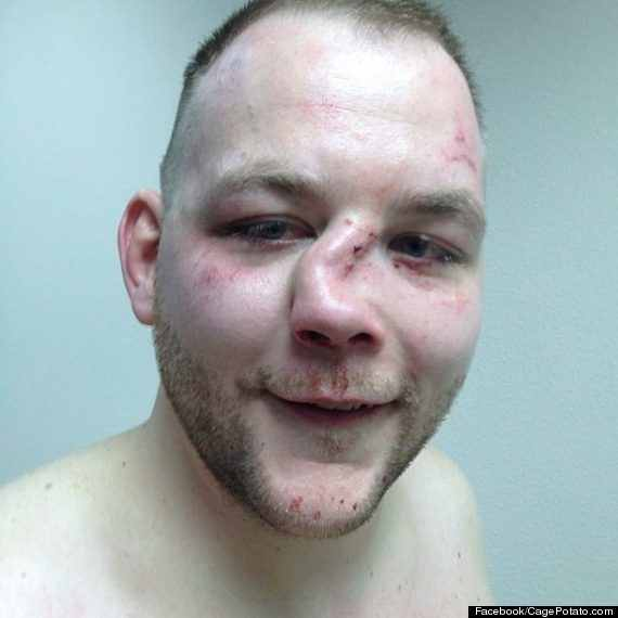 Man With a Broken Nose Man Nominated For Broken Nose