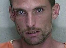 Florida Man Leaves 3 Kids In Car To Drink, Gets Beat By Bar