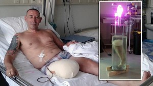 Man Has His Amputated Leg Turned Into A Lamp, Tries To Sell It On eBay