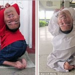 OMG! Meet the Brazilian man born with his head upside-down