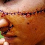 Graphic: Teenage girl left disfigured after 'jealous rivals mutilate her for being too pretty'