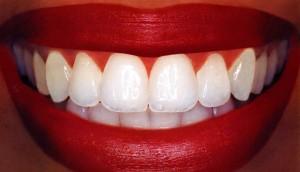 make your teeth super white