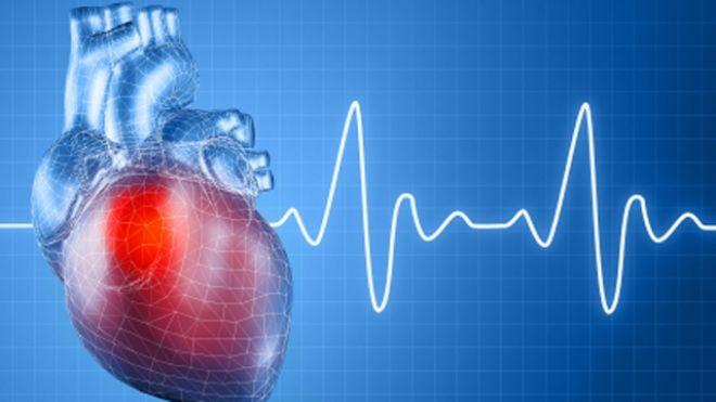 Heart_ECG_640