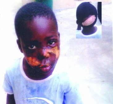 _little-daniel-with-scalded-face.-inset...-injury-inflicted-on-his-head-by-his-mother-366x336