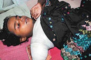 Uzma Ara, whose arm was chopped by criminals, in her hospital bed in Patna.