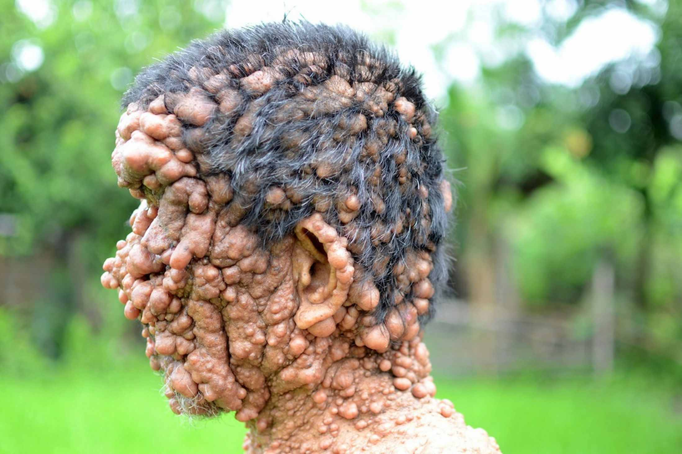 Rare Condition That Covers Man's Skin in Tumours Which ...