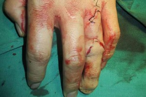 Doctors-use-toe-to-create-new-finger-for-student-3022631