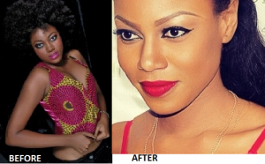 Yvonne-Nelson-Before-After-Skin-