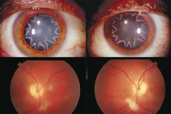 PHOTOS: Electrician Gets Star-Shaped Eyes After 14,000 Volt Shock