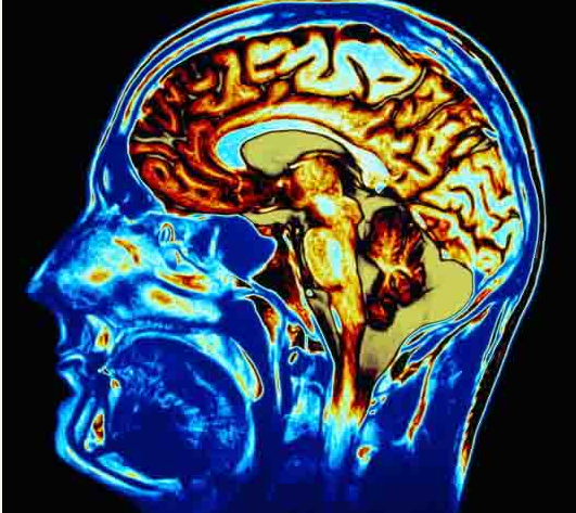 9 Things You Might Not Know Damages The Brain