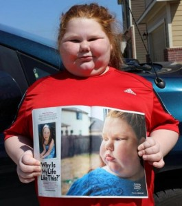 Obese-12-year-old-girl-who-cant-stop-eating-gets-lifesaving-surgery