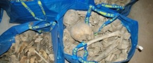 Woman Finds Bags Filled With Human Bones Of About 80 Skeletons