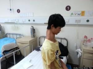 Guy With Amazingly Long Neck To Undergo Surgery (PHOTO)
