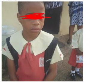 Primary 2 Pupil Battered By Father's Lover In Benin